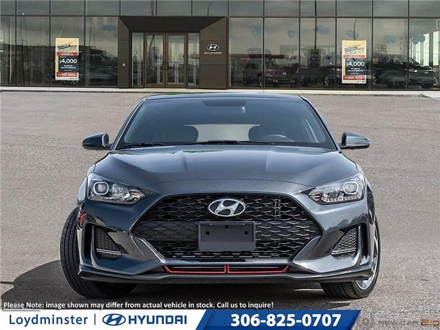 2020 Hyundai Veloster Turbo (Stk: 0VE4906) in Lloydminster - Image 2 of 22