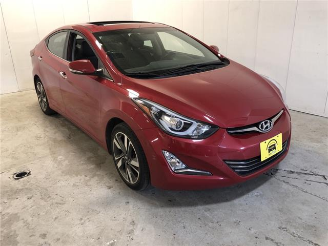 2015 Hyundai Elantra Limited (Stk: 303234) in Milton - Image 1 of 27