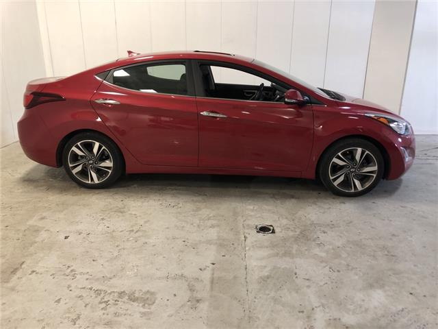 2015 Hyundai Elantra Limited (Stk: 303234) in Milton - Image 2 of 27
