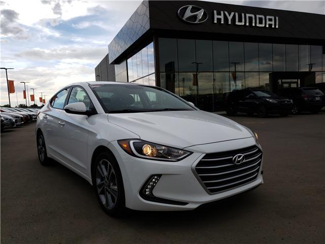 2017 Hyundai Elantra GLS (Stk: 28194E) in Saskatoon - Image 1 of 20