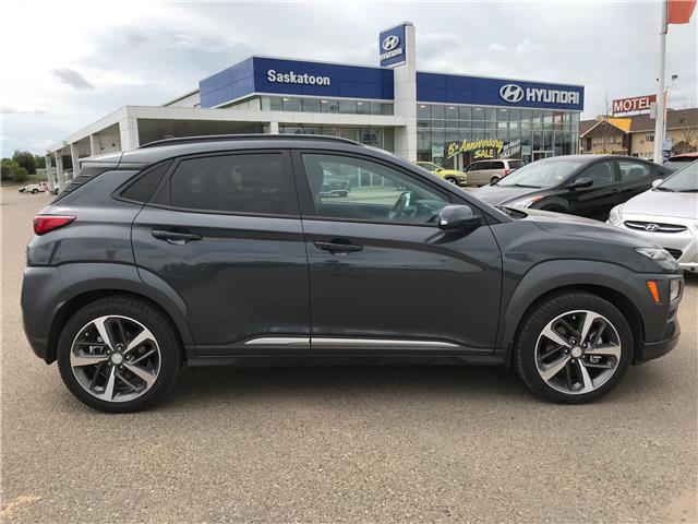 2020 Hyundai Kona 1.6T Ultimate (Stk: 40191) in Saskatoon - Image 2 of 23