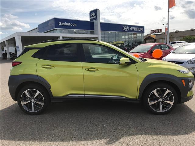 2020 Hyundai Kona 1.6T Ultimate w/Lime Colour Pack (Stk: 40207) in Saskatoon - Image 2 of 20