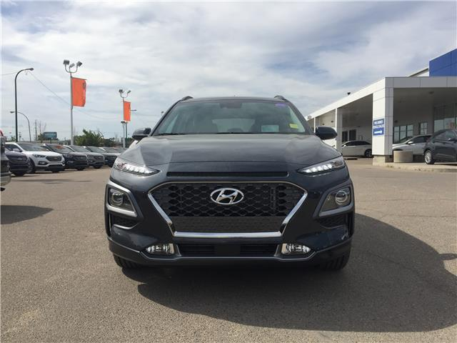 2020 Hyundai Kona 1.6T Ultimate (Stk: 40203) in Saskatoon - Image 2 of 19