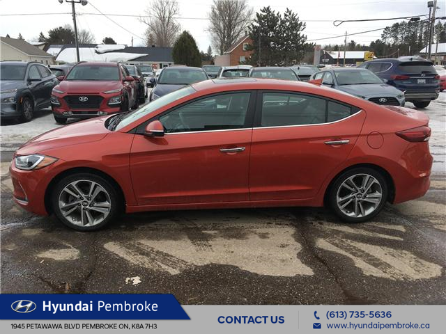 2017 Hyundai Elantra Limited (Stk: P363) in Pembroke - Image 2 of 27