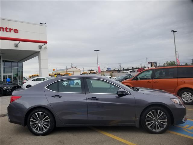 2018 Acura TLX Tech (Stk: U194287) in Calgary - Image 2 of 30
