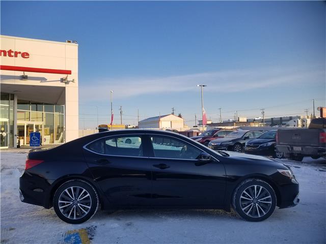 2018 Acura TLX Tech (Stk: U194410) in Calgary - Image 2 of 30