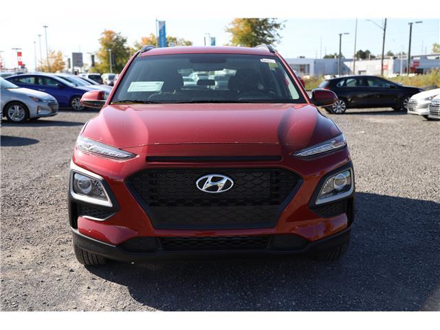 2020 Hyundai Kona 2.0L Essential (Stk: R05163) in Ottawa - Image 2 of 9