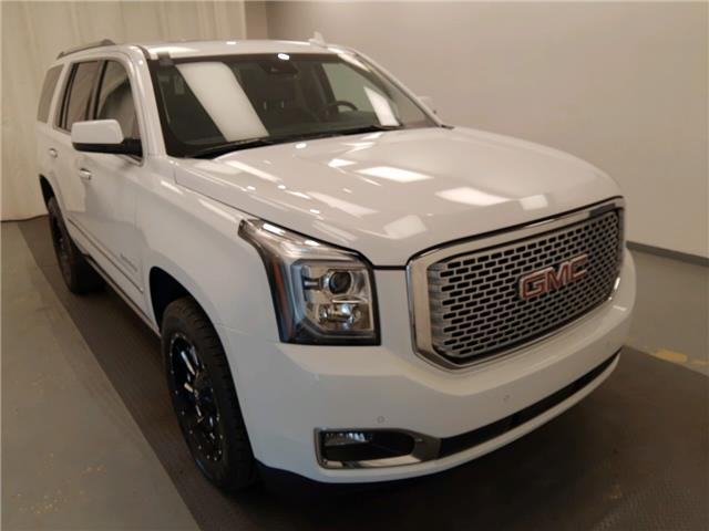 2017 GMC Yukon Denali (Stk: 177517) in Lethbridge - Image 1 of 30