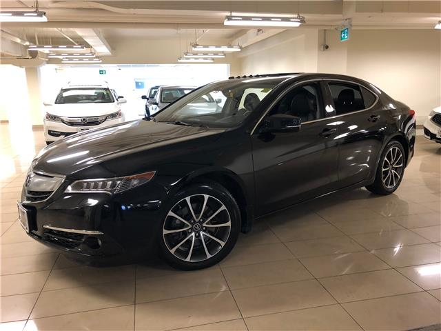 2017 Acura TLX Base (Stk: AP3651) in Toronto - Image 1 of 30