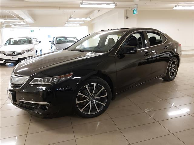 2017 Acura TLX Base (Stk: AP3644) in Toronto - Image 1 of 29