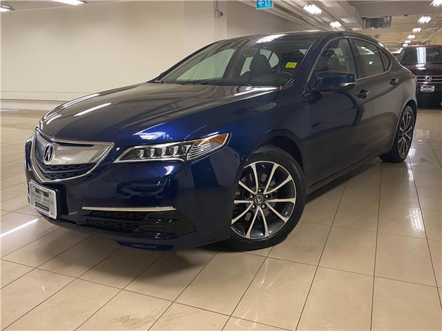 2017 Acura TLX Base (Stk: AP3779) in Toronto - Image 1 of 28