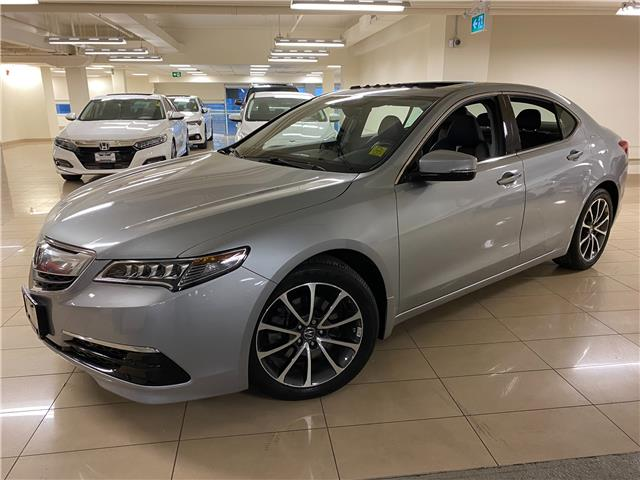 2017 Acura TLX Base (Stk: AP3901) in Toronto - Image 1 of 30
