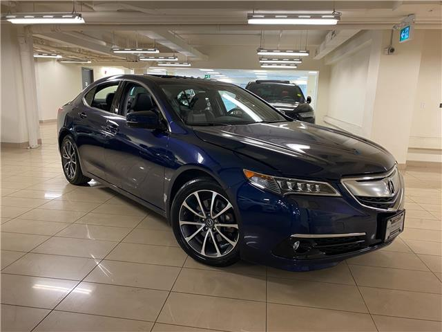 2017 Acura TLX Base (Stk: AP4064) in Toronto - Image 1 of 38