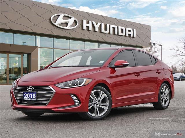 2018 Hyundai Elantra GLS (Stk: 80018) in London - Image 1 of 27