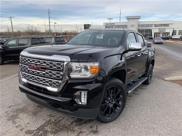 2021 GMC Canyon Denali (Stk: M1162209) in Calgary - Image 1 of 30