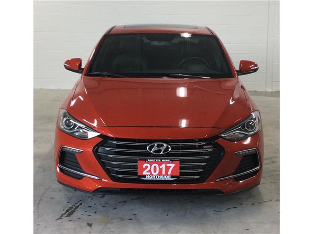 2017 Hyundai Elantra Sport (Stk: H18029A) in Sault Ste. Marie - Image 2 of 10