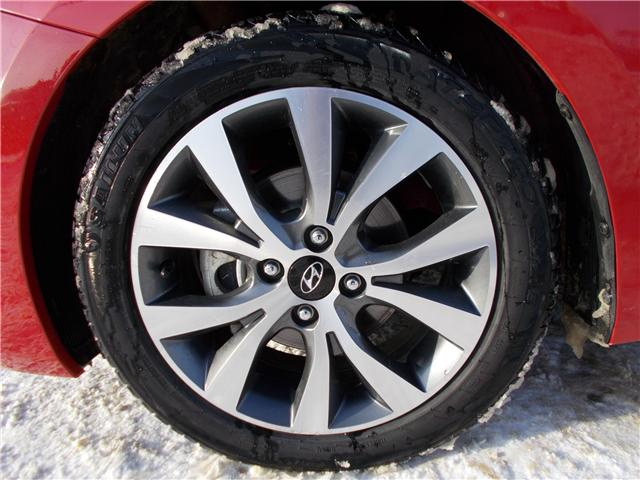 2017 Hyundai Accent GL (Stk: B1831) in Prince Albert - Image 18 of 19