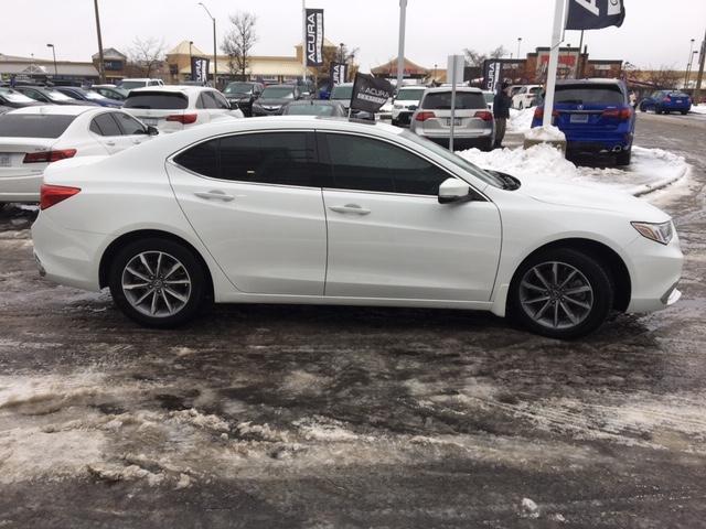 2018 Acura TLX Tech (Stk: 1810250) in Hamilton - Image 6 of 23