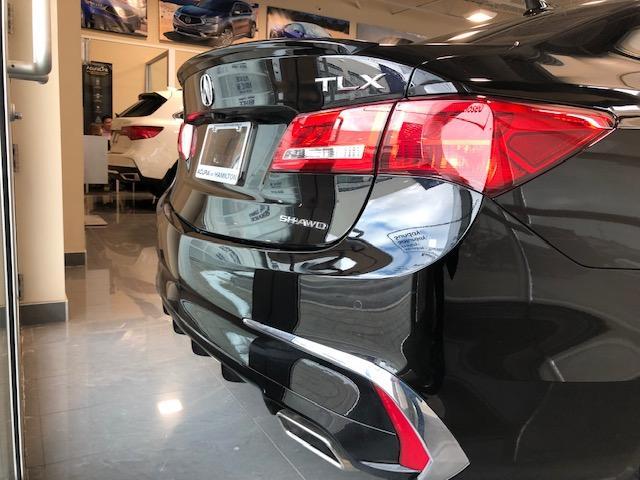 2018 Acura TLX Elite (Stk: 1813220) in Hamilton - Image 4 of 15