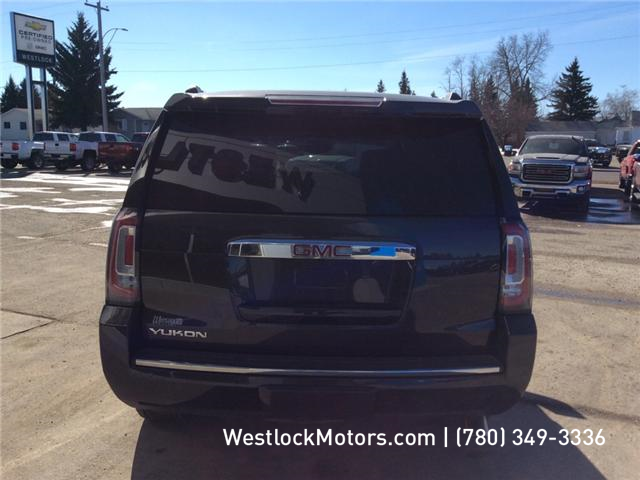 2015 GMC Yukon Denali (Stk: T1907) in Westlock - Image 5 of 13