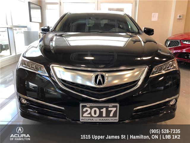 2017 Acura TLX Base (Stk: 1713610) in Hamilton - Image 2 of 17