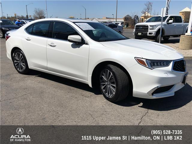 2018 Acura TLX Tech (Stk: 1813830) in Hamilton - Image 3 of 16