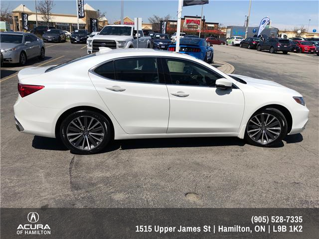 2018 Acura TLX Tech (Stk: 1813830) in Hamilton - Image 4 of 16