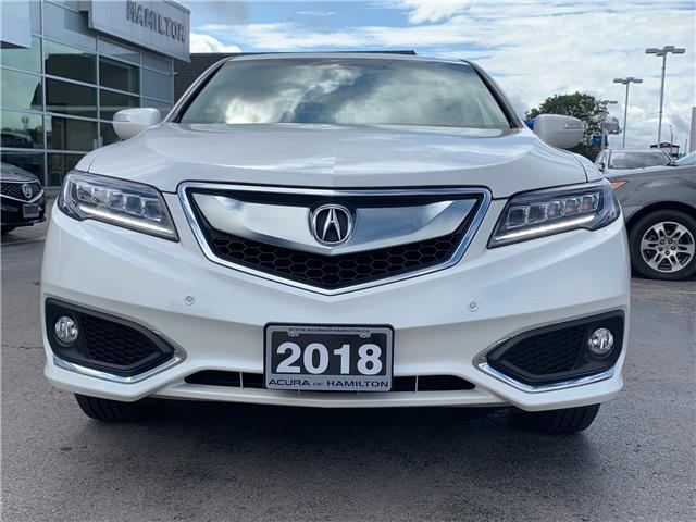 2018 Acura RDX Elite (Stk: 1816960) in Hamilton - Image 3 of 33