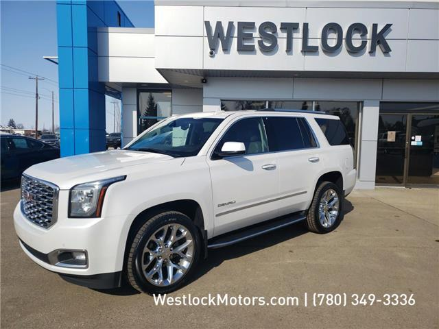 2018 GMC Yukon Denali (Stk: 20T93A) in Westlock - Image 1 of 20