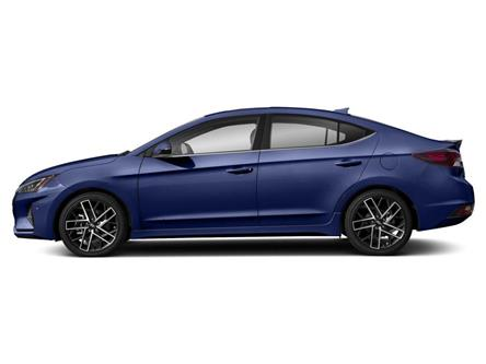2019 Hyundai Elantra Sport (Stk: 28903) in Scarborough - Image 2 of 9