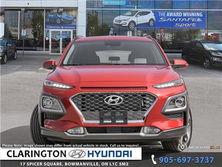 2019 Hyundai Kona 1.6T Ultimate (Stk: 19395) in Clarington - Image 2 of 24