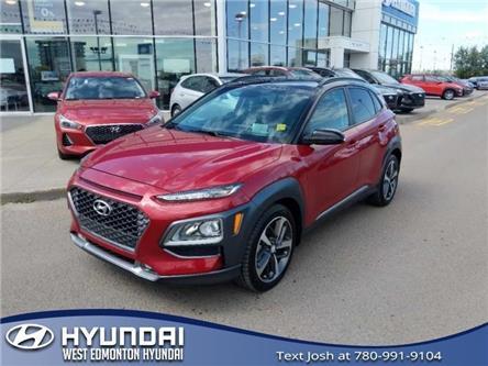 2018 Hyundai Kona 1.6T Trend (Stk: E4628) in Edmonton - Image 2 of 23