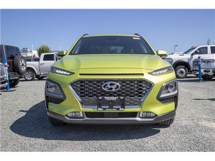 2020 Hyundai Kona 1.6T Ultimate w/Lime Colour Pack (Stk: LK426438) in Abbotsford - Image 2 of 26