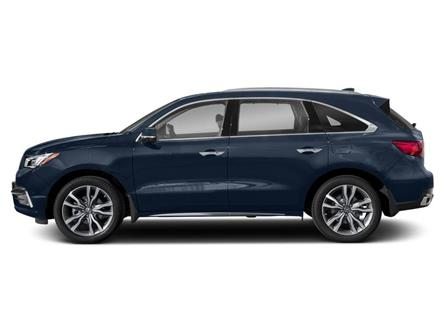 2020 Acura MDX Elite (Stk: 20090) in Burlington - Image 2 of 9