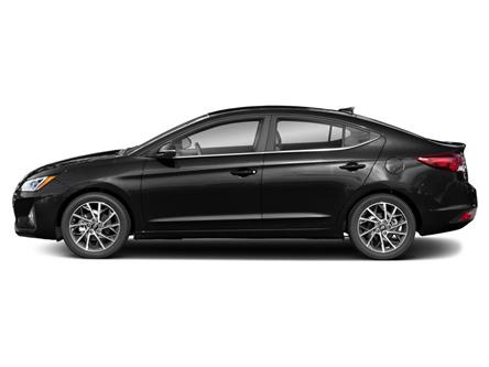 2020 Hyundai Elantra Ultimate (Stk: 29312) in Scarborough - Image 2 of 9