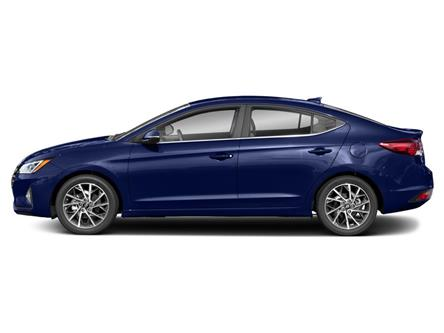 2020 Hyundai Elantra Ultimate (Stk: 29319) in Scarborough - Image 2 of 9