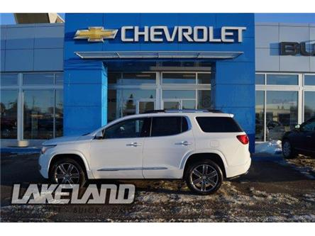 2019 GMC Acadia Denali (Stk: ST9076) in St Paul - Image 2 of 25