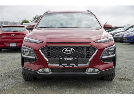 2020 Hyundai Kona 1.6T Ultimate (Stk: LK420499) in Abbotsford - Image 2 of 27