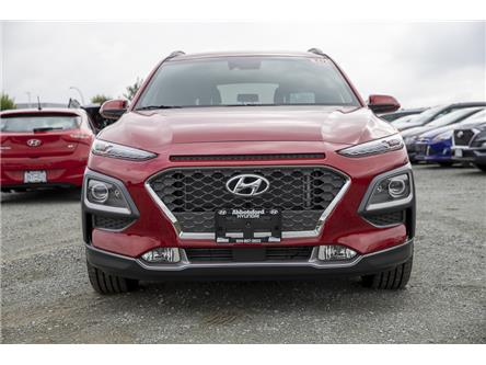 2020 Hyundai Kona 1.6T Ultimate w/Red Colour Pack (Stk: LK428522) in Abbotsford - Image 2 of 24