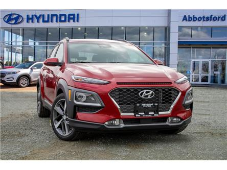 2020 Hyundai Kona 1.6T Ultimate w/Red Colour Pack (Stk: LK428522) in Abbotsford - Image 1 of 24