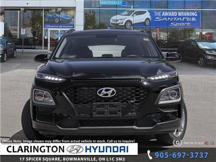 2020 Hyundai Kona 2.0L Essential (Stk: 19720) in Clarington - Image 2 of 25