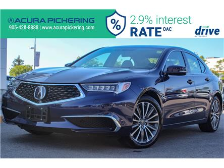 2018 Acura TLX Tech (Stk: AP4974) in Pickering - Image 1 of 34