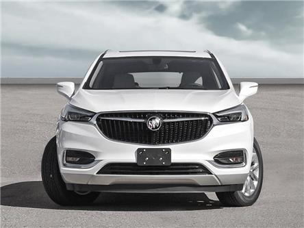 2020 Buick Enclave Essence (Stk: L153134) in Scarborough - Image 2 of 22