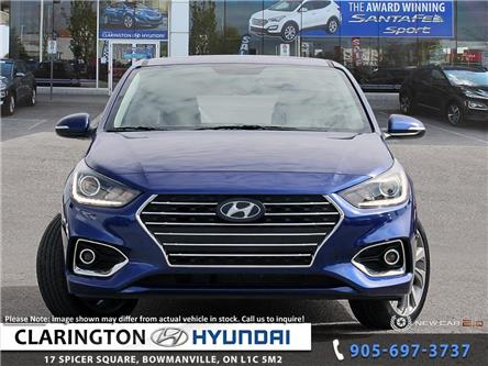 2020 Hyundai Accent Ultimate (Stk: 19676) in Clarington - Image 2 of 24