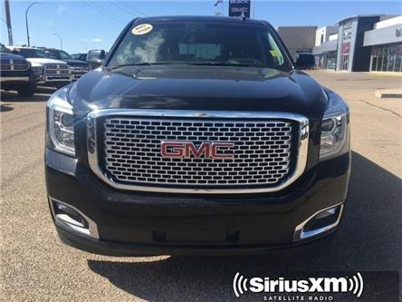 2017 GMC Yukon Denali (Stk: 156787) in Medicine Hat - Image 2 of 27