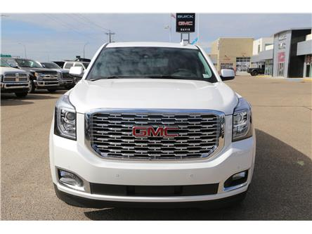 2020 GMC Yukon Denali (Stk: 177908) in Medicine Hat - Image 2 of 26