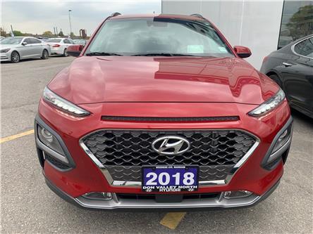 2018 Hyundai Kona 1.6T Ultimate (Stk: 8007H) in Markham - Image 2 of 21