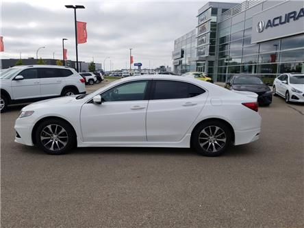 2015 Acura TLX Elite (Stk: A4097) in Saskatoon - Image 2 of 20