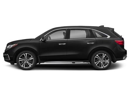 2020 Acura MDX Tech Plus (Stk: AU159) in Pickering - Image 2 of 9