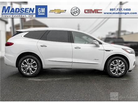 2020 Buick Enclave Avenir (Stk: 20105) in Sioux Lookout - Image 2 of 4